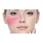 Как ухаживать за куперозной кожей?